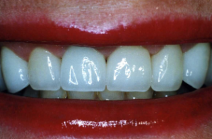 Parkland Dentist - Crowns After