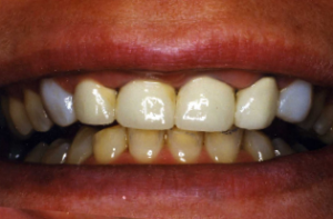 Parkland Dentist - Crowns Before