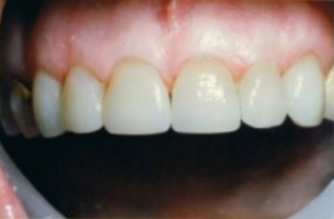 Cosmetic Veneers in Parkland FL - Before