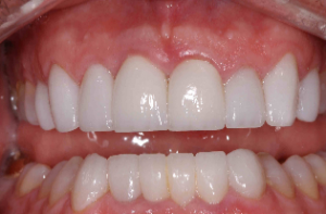 Crowns and Veneers in Parkland FL - After