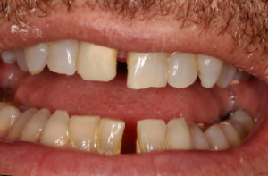 Crowns and Veneers in Parkland FL - Before
