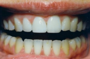 Dental Bonding in Parkland FL - After