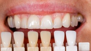 Dental Veneers in Parkland FL