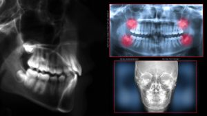 Digital Radiography in Parkland FL