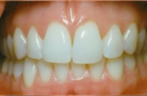 Teeth Whitening in Parkland FL