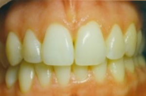 Teeth Whitening in ParklandFL - Before