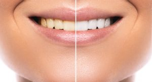 What You Should Know About Teeth Whitening